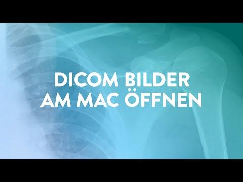 Das Tutorial, das du hoffentlich niemals brauchen wirst – DICOM-Bilder am Mac öffnen